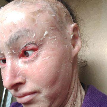 Moradora de Trombudo Central com grave doença de pele  necessita de auxílio para alimentação da família
