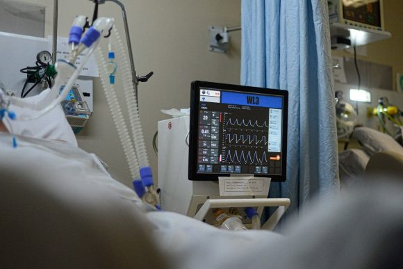 Baixa média de idade de pacientes internados com Covid-19 na UTI do Hospital Regional