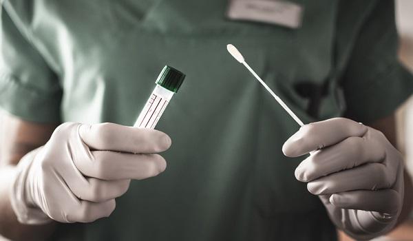 Planos de saúde têm que autorizar imediatamente exame PCR, para diagnóstico de Covid