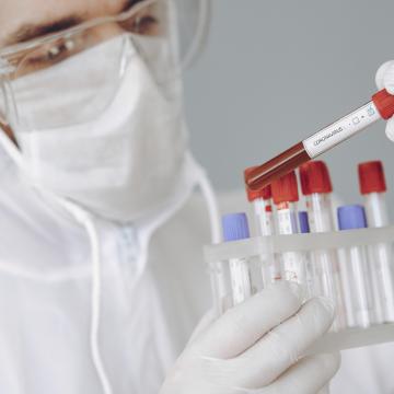 SC confirma a transmissão comunitária da variante Delta do coronavírus